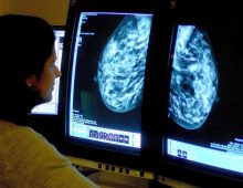 Women's Access to Cancer Screenings